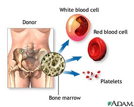 Bone Marrow Transplant Diagram