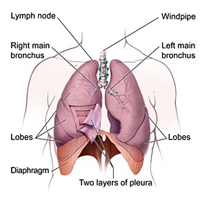 Ucla jonsson comprehensive cancer center lung cancer diagram of the lungs ccuart Image collections